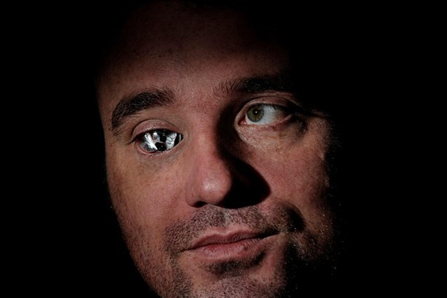Imagem de Eyeborg: canadense implanta câmera dentro de seu olho de vidro [vídeo] no tecmundo