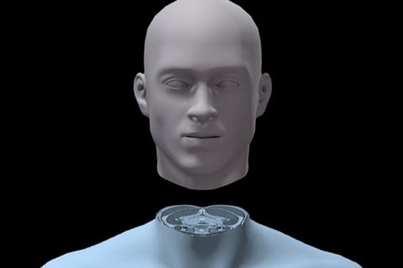 Imagem de Cirurgião italiano planeja transplante de cabeça e já tem um voluntário no tecmundo