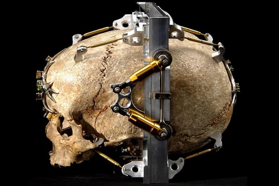 Imagem de Câmera fotográfica feita com crânio humano é bizarra, mas funciona no site TecMundo