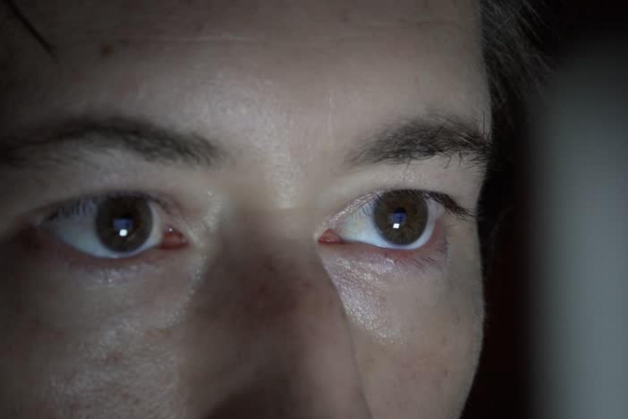 Imagem de Uso excessivo dos smartphones está alterando o formato dos nossos olhos no tecmundo