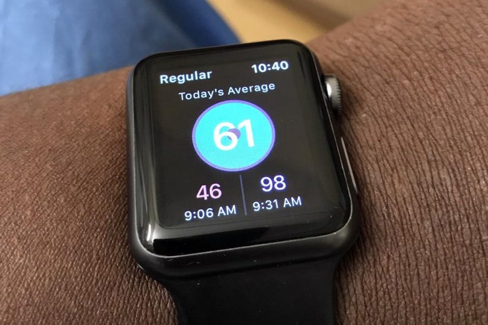 Imagem de Apple Watch salva a vida de americano ao detectar embolia pulmonar no tecmundo