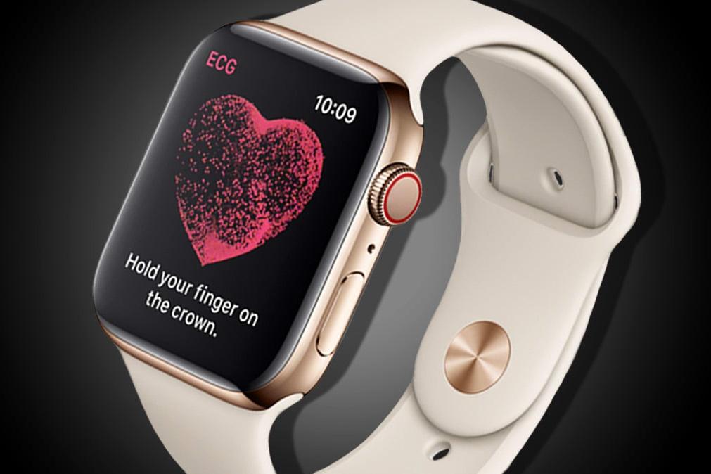 Imagem de Eletrocardiograma do Apple Watch deve ser ativado com o watchOS 5.1.2 no tecmundo