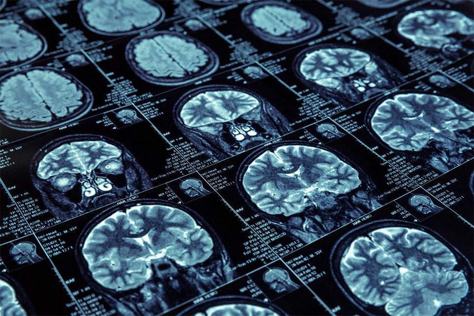 Imagem de Philips está desenvolvendo algoritmos e IAs para diagnosticar câncer no tecmundo